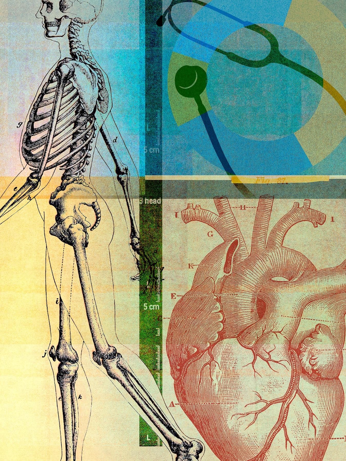 Medical collage illustration